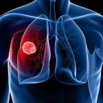 lung cancer misdiagnosed solicitor